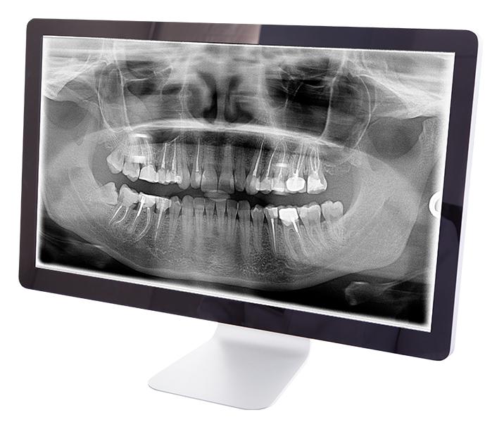 digital x-rays con computer